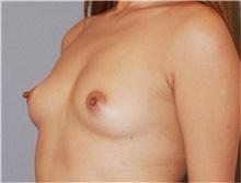 Breast Augmentation Before Photo by Ramin Behmand, MD; Walnut Creek, CA - Case 31498