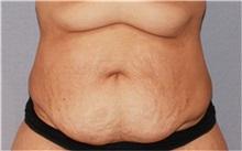 Tummy Tuck Before Photo by Ramin Behmand, MD; Walnut Creek, CA - Case 31506