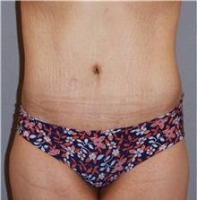 Body Lift After Photo by Ramin Behmand, MD; Walnut Creek, CA - Case 31514