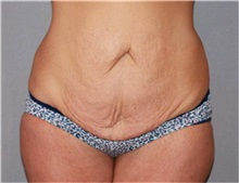 Body Lift Before Photo by Ramin Behmand, MD; Walnut Creek, CA - Case 31517