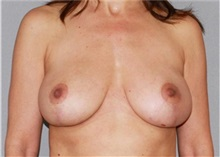 Breast Reduction After Photo by Ramin Behmand, MD; Walnut Creek, CA - Case 31520
