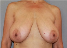 Breast Reduction Before Photo by Ramin Behmand, MD; Walnut Creek, CA - Case 31520