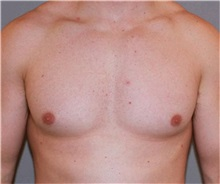 Male Breast Reduction After Photo by Ramin Behmand, MD; Walnut Creek, CA - Case 31521