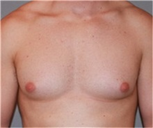 Male Breast Reduction Before Photo by Ramin Behmand, MD; Walnut Creek, CA - Case 31521