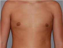 Male Breast Reduction After Photo by Ramin Behmand, MD; Walnut Creek, CA - Case 31522
