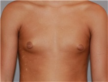 Male Breast Reduction Before Photo by Ramin Behmand, MD; Walnut Creek, CA - Case 31522