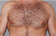 Male Breast Reduction After Photo by Ramin Behmand, MD; Walnut Creek, CA - Case 31523