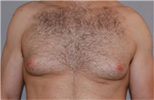 Male Breast Reduction Before Photo by Ramin Behmand, MD; Walnut Creek, CA - Case 31523