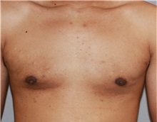 Male Breast Reduction After Photo by Ramin Behmand, MD; Walnut Creek, CA - Case 31524