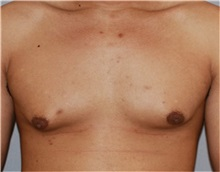 Male Breast Reduction Before Photo by Ramin Behmand, MD; Walnut Creek, CA - Case 31524