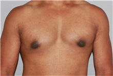 Male Breast Reduction After Photo by Ramin Behmand, MD; Walnut Creek, CA - Case 31525