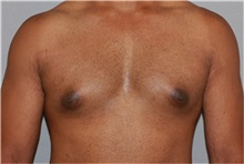 Male Breast Reduction Before Photo by Ramin Behmand, MD; Walnut Creek, CA - Case 31525