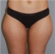 Liposuction Before Photo by Ramin Behmand, MD; Walnut Creek, CA - Case 31526