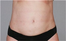 Liposuction After Photo by Ramin Behmand, MD; Walnut Creek, CA - Case 31528