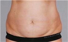 Liposuction Before Photo by Ramin Behmand, MD; Walnut Creek, CA - Case 31528