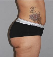Liposuction After Photo by Ramin Behmand, MD; Walnut Creek, CA - Case 31529