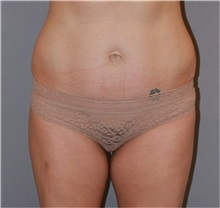 Liposuction Before Photo by Ramin Behmand, MD; Walnut Creek, CA - Case 31531
