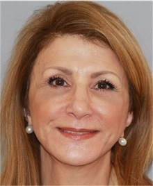 Facelift After Photo by Ramin Behmand, MD; Walnut Creek, CA - Case 31542