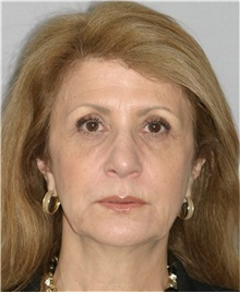 Facelift Before Photo by Ramin Behmand, MD; Walnut Creek, CA - Case 31542