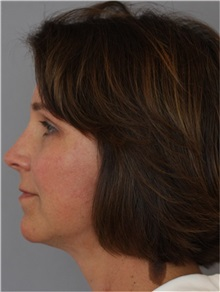 Facelift After Photo by Ramin Behmand, MD; Walnut Creek, CA - Case 31543