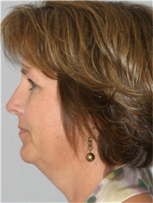 Facelift Before Photo by Ramin Behmand, MD; Walnut Creek, CA - Case 31543