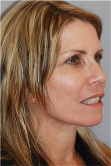 Facelift After Photo by Ramin Behmand, MD; Walnut Creek, CA - Case 31544