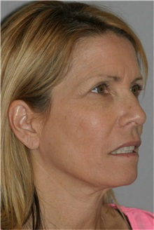 Facelift Before Photo by Ramin Behmand, MD; Walnut Creek, CA - Case 31544