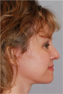 Facelift After Photo by Ramin Behmand, MD; Walnut Creek, CA - Case 31545