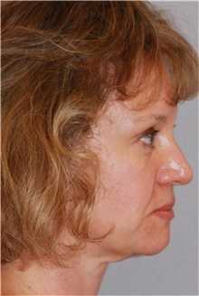 Facelift Before Photo by Ramin Behmand, MD; Walnut Creek, CA - Case 31545