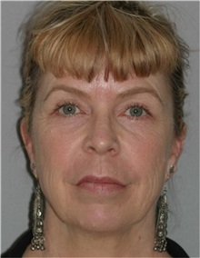 Facelift Before Photo by Ramin Behmand, MD; Walnut Creek, CA - Case 31548
