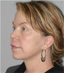 Facelift After Photo by Ramin Behmand, MD; Walnut Creek, CA - Case 31548