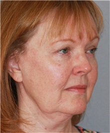 Facelift Before Photo by Ramin Behmand, MD; Walnut Creek, CA - Case 31549
