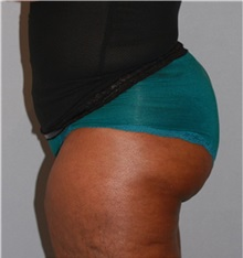 Buttock Lift with Augmentation After Photo by Ramin Behmand, MD; Walnut Creek, CA - Case 31580
