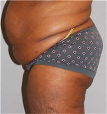 Buttock Lift with Augmentation Before Photo by Ramin Behmand, MD; Walnut Creek, CA - Case 31580