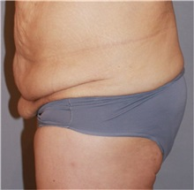 Buttock Lift with Augmentation Before Photo by Ramin Behmand, MD; Walnut Creek, CA - Case 31581
