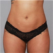 Liposuction After Photo by Ramin Behmand, MD; Walnut Creek, CA - Case 31583