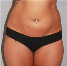 Liposuction Before Photo by Ramin Behmand, MD; Walnut Creek, CA - Case 31583