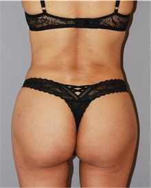 Buttock Lift with Augmentation After Photo by Ramin Behmand, MD; Walnut Creek, CA - Case 31584
