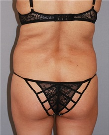 Buttock Lift with Augmentation Before Photo by Ramin Behmand, MD; Walnut Creek, CA - Case 31584