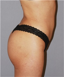 Buttock Lift with Augmentation After Photo by Ramin Behmand, MD; Walnut Creek, CA - Case 31585