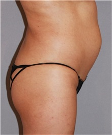 Buttock Lift with Augmentation Before Photo by Ramin Behmand, MD; Walnut Creek, CA - Case 31585