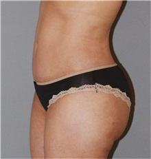 Buttock Lift with Augmentation After Photo by Ramin Behmand, MD; Walnut Creek, CA - Case 31586