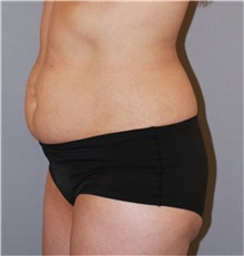 Buttock Lift with Augmentation Before Photo by Ramin Behmand, MD; Walnut Creek, CA - Case 31586