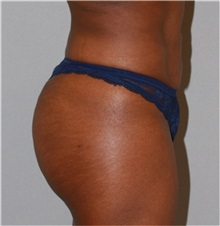 Buttock Lift with Augmentation After Photo by Ramin Behmand, MD; Walnut Creek, CA - Case 31587