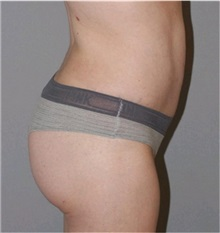 Buttock Lift with Augmentation After Photo by Ramin Behmand, MD; Walnut Creek, CA - Case 31589
