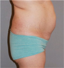 Buttock Lift with Augmentation Before Photo by Ramin Behmand, MD; Walnut Creek, CA - Case 31589