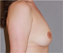 Breast Reduction After Photo by Ramin Behmand, MD; Walnut Creek, CA - Case 31590