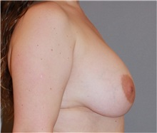 Breast Reduction Before Photo by Ramin Behmand, MD; Walnut Creek, CA - Case 31590
