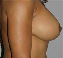 Breast Lift After Photo by Ramin Behmand, MD; Walnut Creek, CA - Case 31597