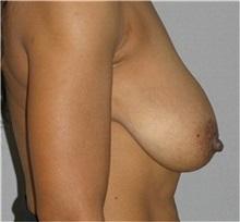 Breast Lift Before Photo by Ramin Behmand, MD; Walnut Creek, CA - Case 31597